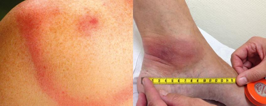 Uiting van de ziekte van Lyme door middel van een rode ring of een rode vlek